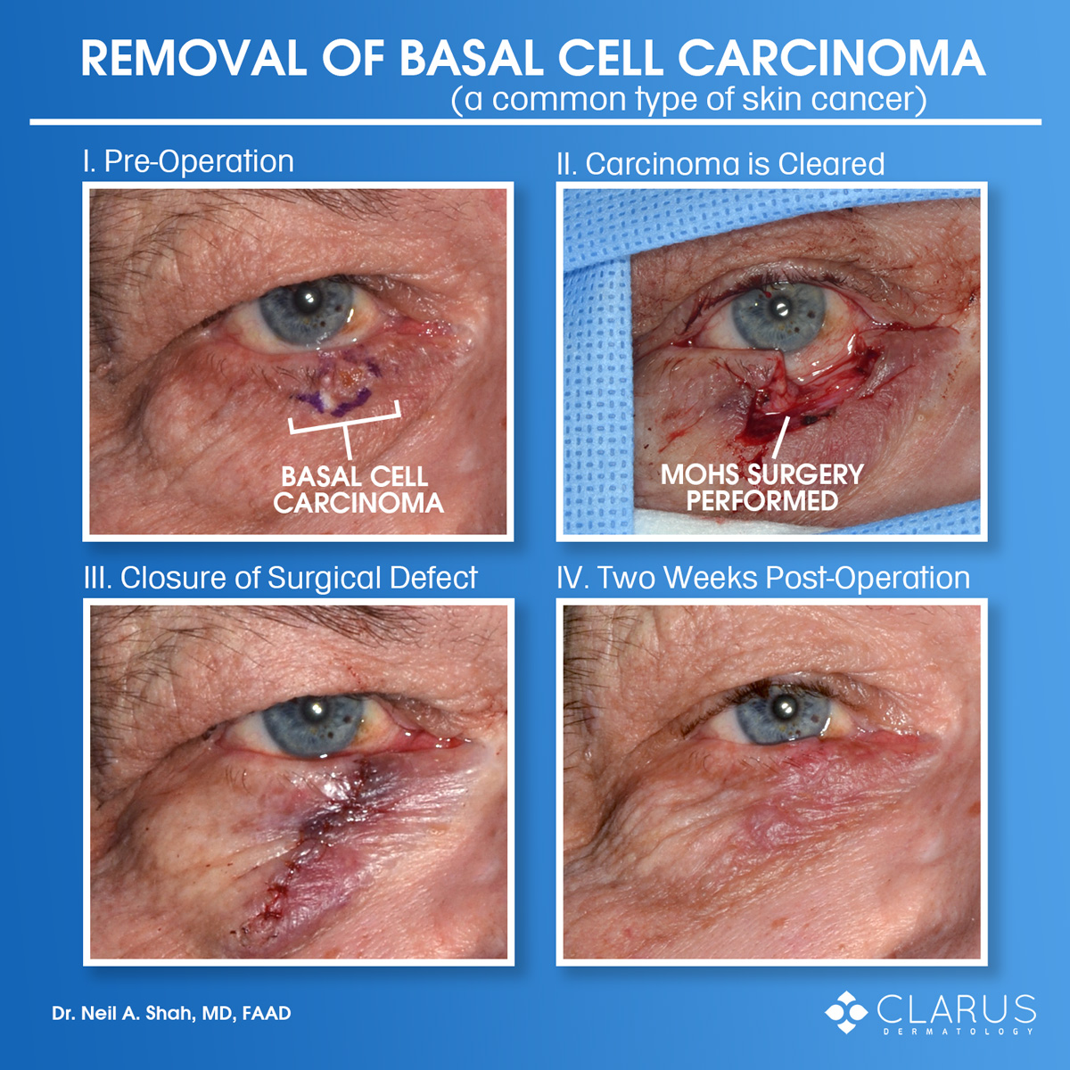 These were taken of a patient that had basal cell carcinoma, a common type of skin cancer, on their eyelid. Dr. Neil Shah performed Mohs surgery at Clarus Dermatology to remove the cancer. The surgical defect was then immediately repaired.