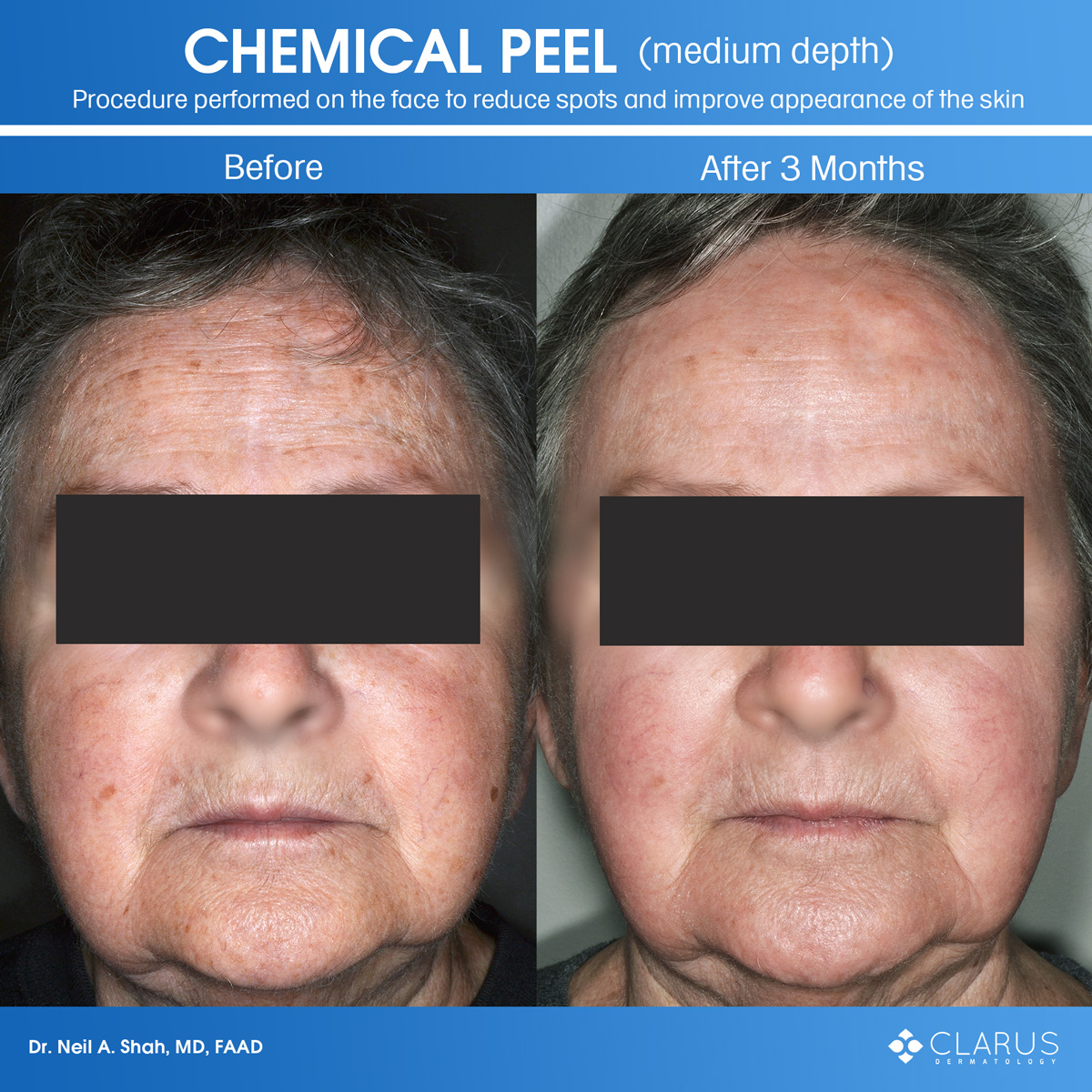 We perform a number of cosmetic treatments at Clarus Dermatology and among them, chemical peels are time-tested, high-value, and popular for dealing with acne, sun-damage, and precancerous skin growths.