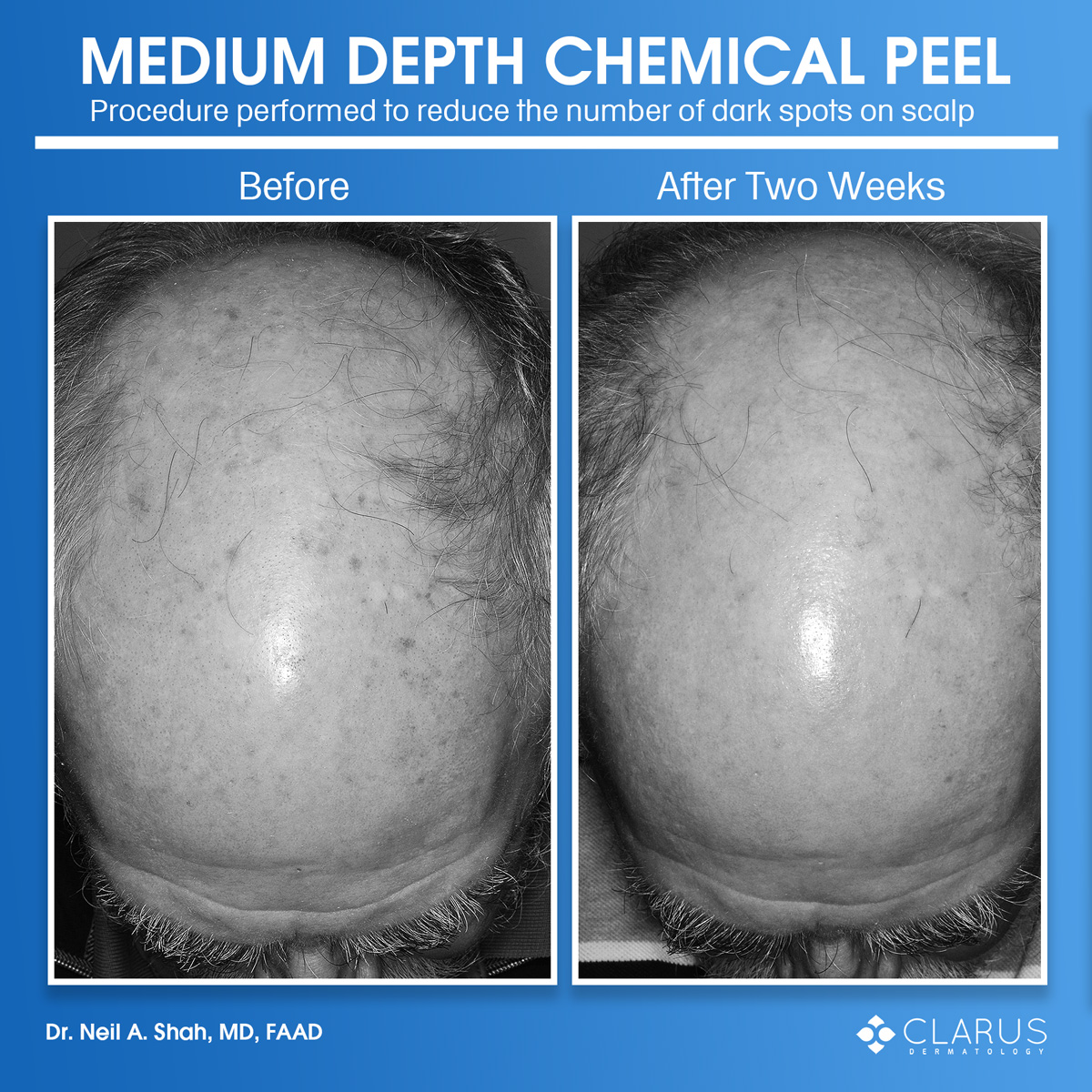 A patient visited our clinic and Dr. Shah performed a medium depth chemical peel on the patient's scalp to reduce the number of brown spots. Even though we own a lot of lasers, we often perform chemical peels at the clinic because they are safe, well-tolerated and highly cost-effective.