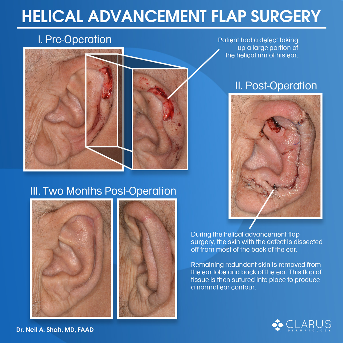 We recently saw a patient here at Clarus Dermatology who needed Mohs surgery to clear a skin cancer on the ear (helical rim). The resulting defect was reasonably broad and fairly deep. In order to restore a preoperative ear shape a helical advancement flap was undertaken and performed by Dr. Neil Shah.