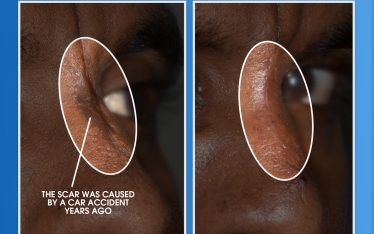 At Clarus Dermatology, we see quite a bit of scar revision referrals. The images below show the case of a patient with a traumatic scar caused by a car accident years ago. Dr. Shah performed a surgical excision of the scar under local anesthesia to provide the patient with a better aesthetic outcome.