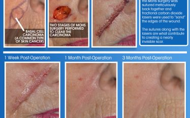 One of the reasons that Clarus Dermatology gets so many referrals from other dermatologists is because of the quality of our scar outcomes. In the case of this patient, the scar is nearly invisible only three months post-operation.
