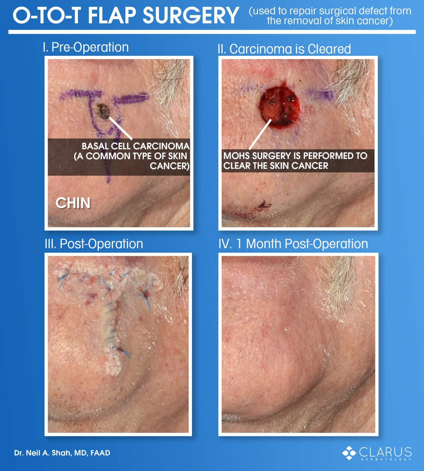 One of the reasons that we have so many satisfied patients at Clarus Dermatology is because of our quality aesthetic outcomes from surgical procedures. The images here are from a patient that had a basal cell carcinoma, a common type of skin cancer, on his chin. Even though the scar is nearly undetectable a month post-operation, there is a lot of unseen effort to achieve that outcome.