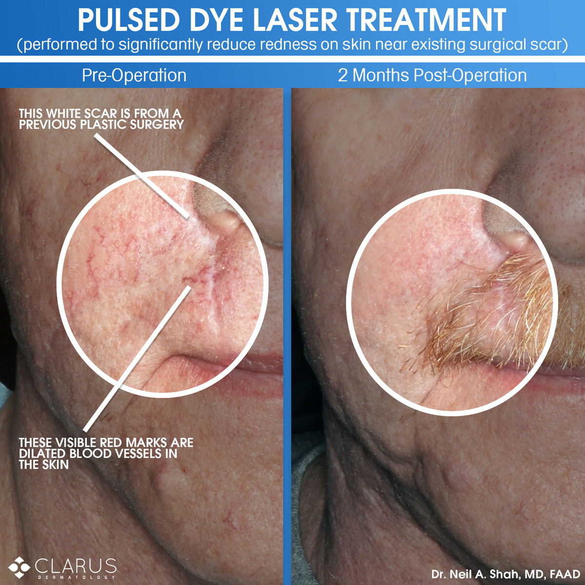 We use lasers in a number of treatments that we perform here at Clarus Dermatology. The improved aesthetic look of the skin from even one round of treatment can be quite stark. The before and after images here are from a patient that had a significant amount of redness on the skin of his cheek and upper lip, including a number of dilated blood vessels.