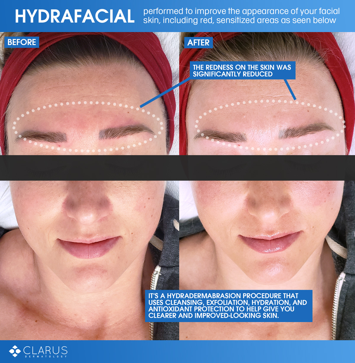 April, our Skin Technician, performs a lot of Hydrafacials at Clarus Dermatology, and that's because it's a treatment that is recommended for any of our patients to help improve the appearance of their facial skin, including those with even the most sensitive skin
