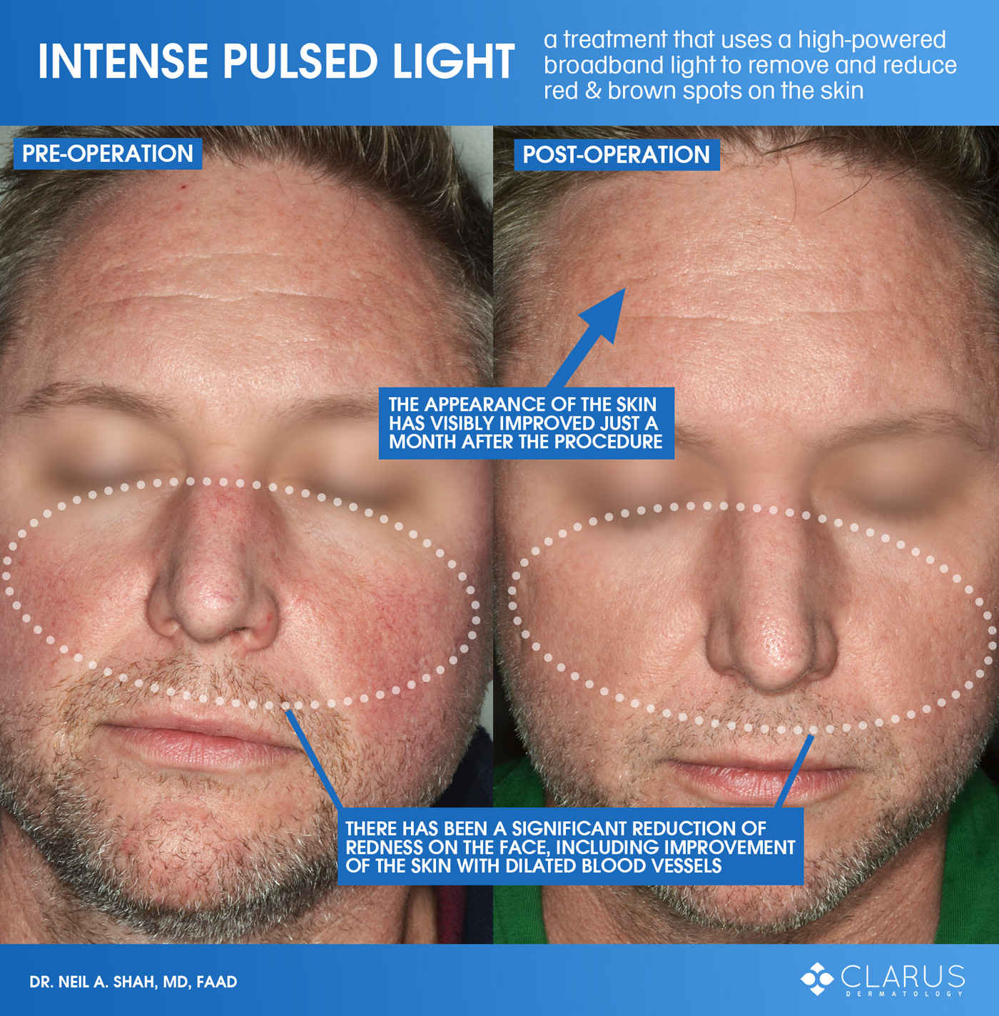 If IPL treatment sounds familiar, it might be because you've seen images that we've posted before to demonstrate how IPL reduced red and brown spots on our patient's skin.