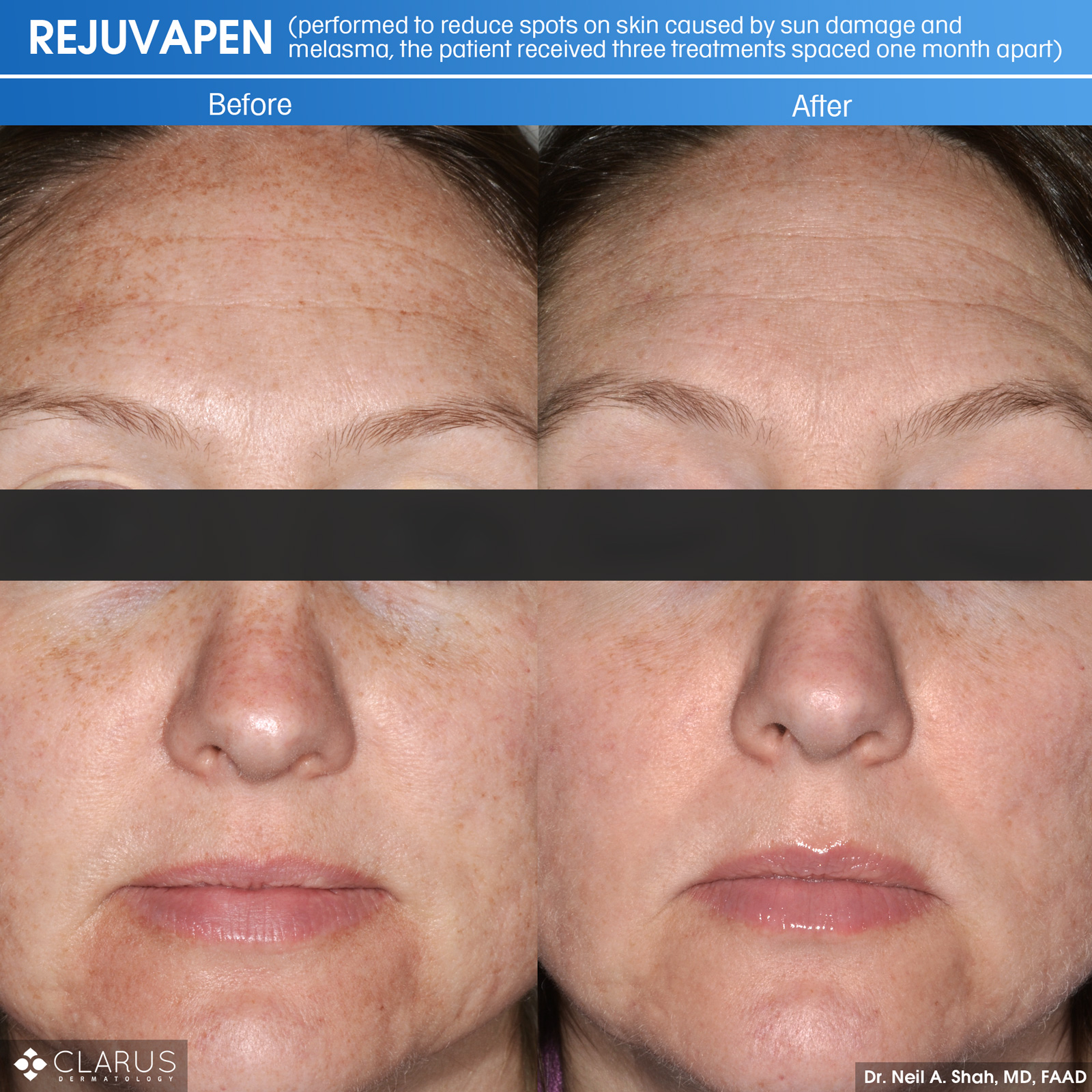 Rejuvapen is a microneedling treatment that we use at Clarus Dermatology for a variety of skin care issues - including ones related to sun damage and melasma (a common skin problem that causes brown and gray-brown patches on the face).