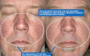 When it comes to the treatments that we perform at Clarus Dermatology, IPL (Intense Pulsed Light) consistently delivers results for our patients. When we look at the before and after images, the visible improvements after just a single treatment are quite apparent.