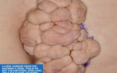 The images are from a patient that board-certified dermatologist Dr. Neil Shah recently saw here at Clarus Dermatology. The large, harmless tumor was determined to most likely be a giant skin tag, known formally as a giant fibroepithelial polyp.